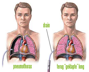 Behandeling longpest